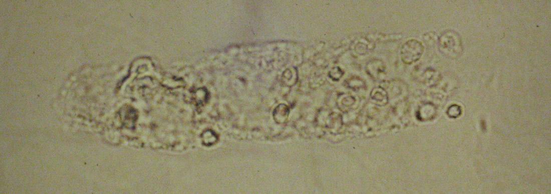 Les cylindres rythrocytaires - Mousse dans les urines ...