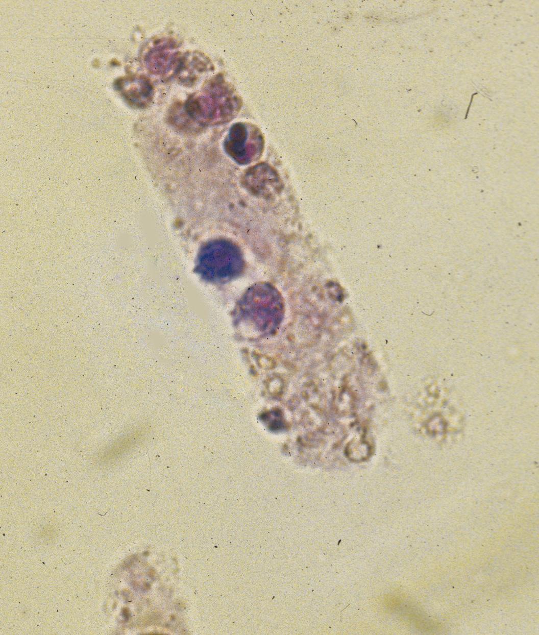 Rbc Casts In Urine